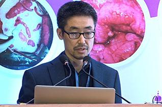 PSOGI International Guidelines for Pseudomyxoma Peritonel and Mesothelima